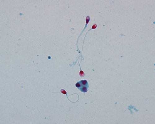 Figure 7. Human spermatozoa stained with Kernechtrot-Picroindigocarmine Stain (KPIC or Christmas Tree Stain)
