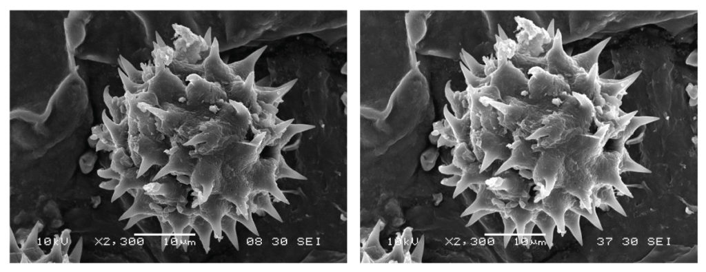 working distance affects scanning electron microscope depth of field