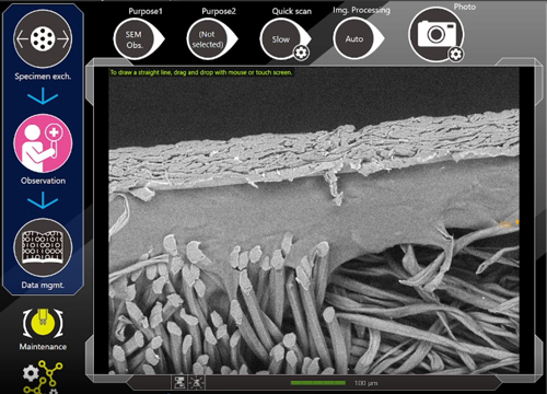 Scanning electron microscope image of a wound care bandage